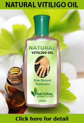 Natural vitiligo treatment with Natural vitiligo oil